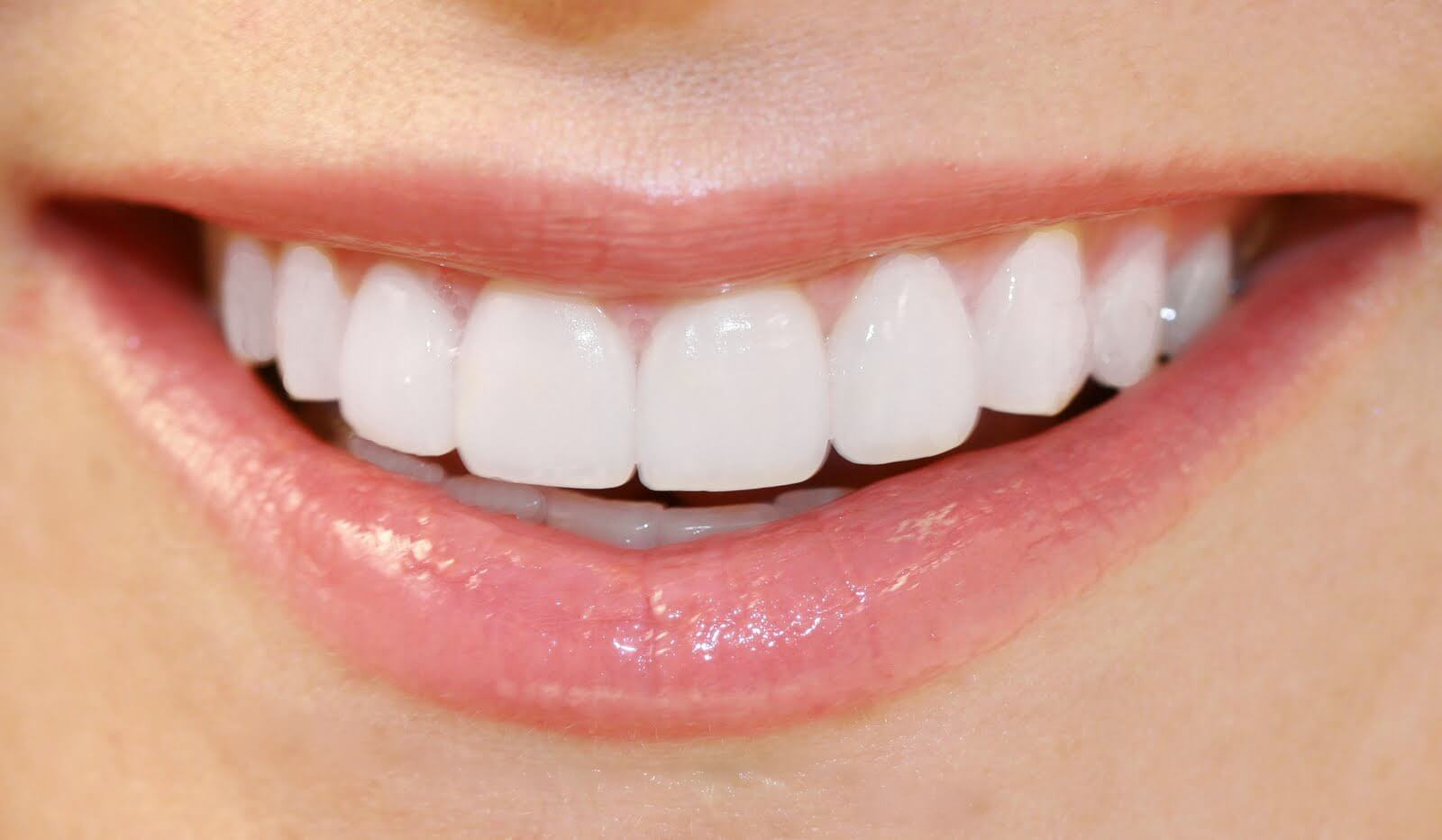 Image result for The History of Porcelain Veneers