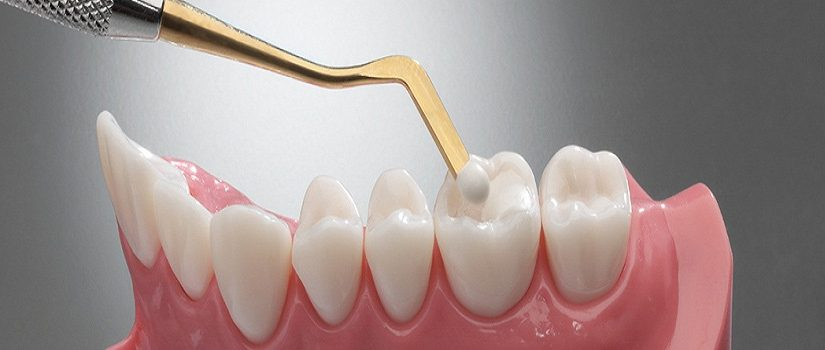 Kallangur Dental Guide - How Long Can You Expect A Dental Filling To Last