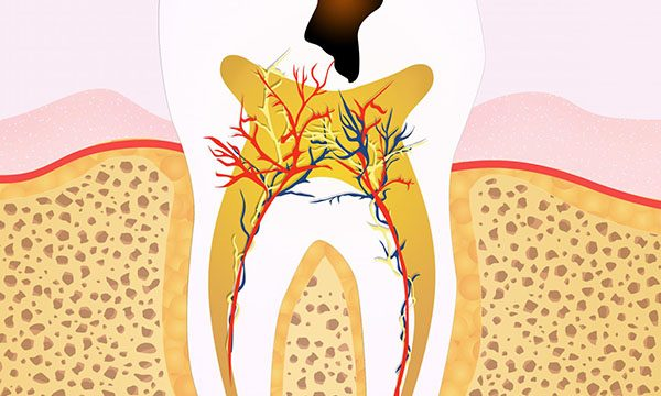 What Are the Signs that You Need Root Canal Treatment