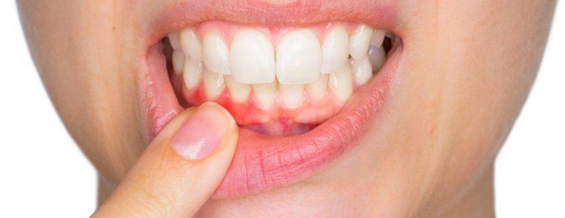 """Dentist Kallangur Guide: Gum Disease – The """"Cure"""" Is Treatment, Then Prevention"""
